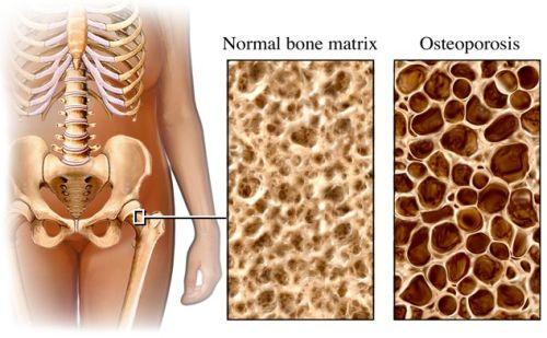 Az egészséges és a csontritkulásban szenvedő csont