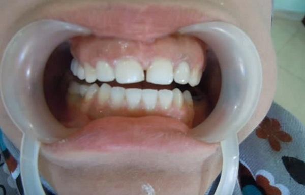 Ha eljön az ideje, a fogakat nagyobb eséllyel lehet majd megmenteni