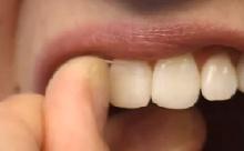 Ha fáj a szuvas fog, régen rossz - Égető fogászati gondok dr. Szalay Éva szerint