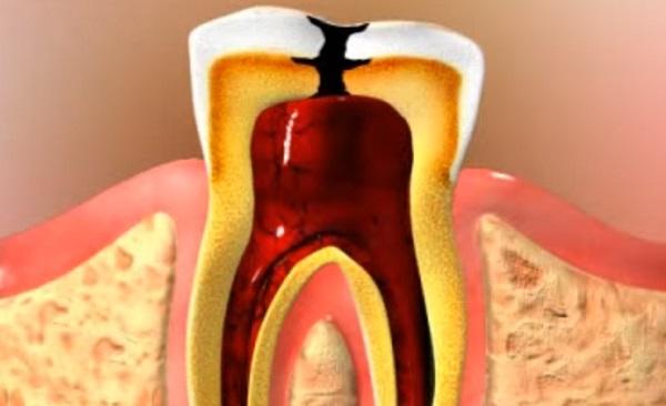 A foggyökércsatornából könnyen indulhat ki bármilyen krónikus betegség