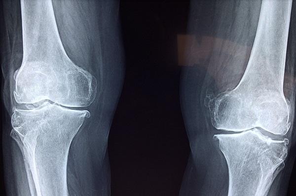 Akinek kattog a térde, az számíthat arthritisre?