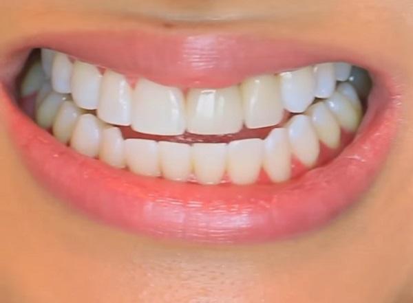 A fogfehérítést és a fogkőleszedést is bízhatjuk dentálhigiénikusra