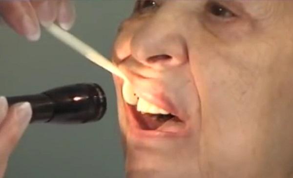 Az idősek megfelelő szájhigiéniája megelőzheti a korai elgyengülést