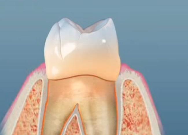 A fogak maguktól újranőhetnek egy Alzheimer-gyógyszernek köszönhetően