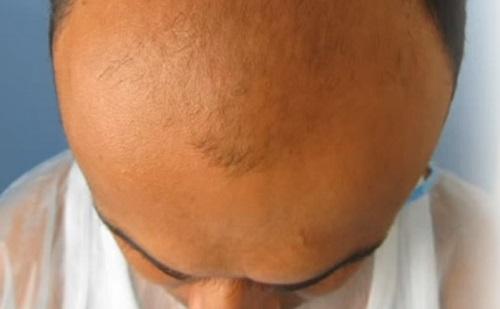 Kopaszból hajas: így történik a hajbeültetés
