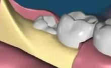 Bölcsességfog: mi történik a foghúzás alatt?