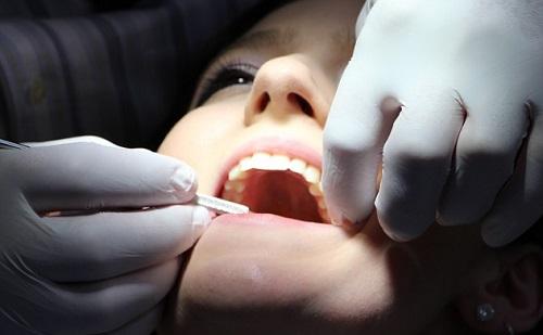 Ilyen kockázattal járhat a fogászat is?