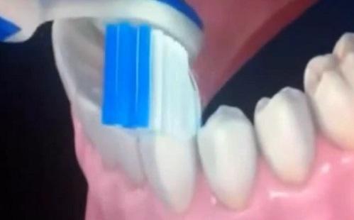 Ez a legjobb megelőzés fogfájás esetén!