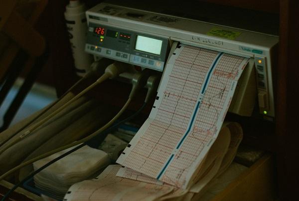Kutatók szerint a szívbetegségekhez hozzájárul az alacsony vasszint