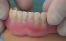 A fogsor fixebb mini implantátummal