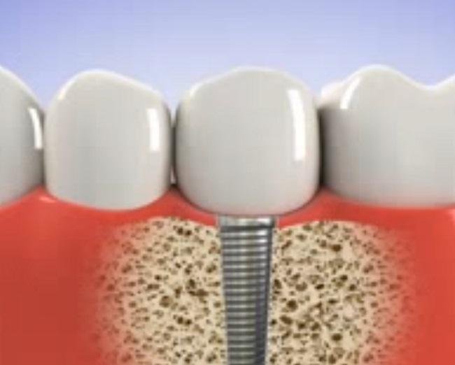 A kutatók speciális bevonattal segítenék a fogimplantátum beilleszkedését