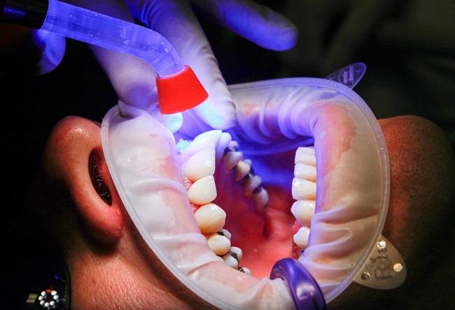 A kutatók védő bevonattal látják el a fogimplantátumokat, hogy ne legyen velük gond