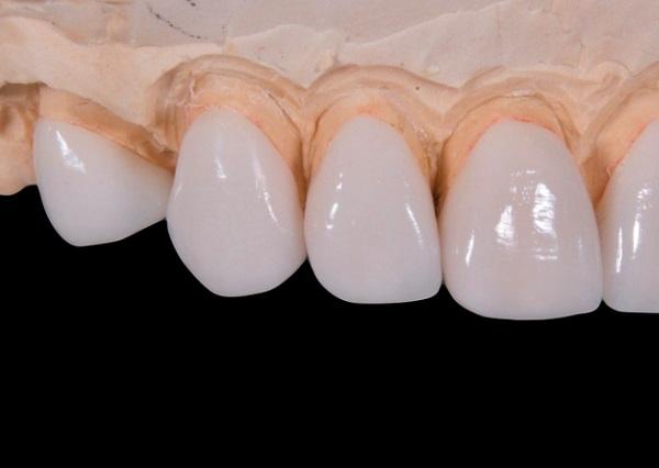 Rendkívül tartós és strapabíró az emberi fogzománc