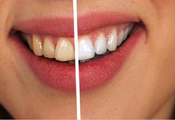 A fogak elszíneződése a táplálkozás eredménye is