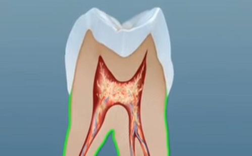 Mi a teendő a letört fogakkal?