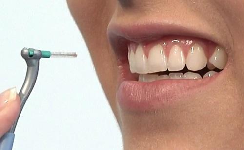 Mi kell még? – Nemcsak fogkefére van szükségünk!