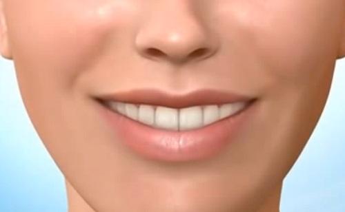 Felnőttként sem ciki a fogszabályozás