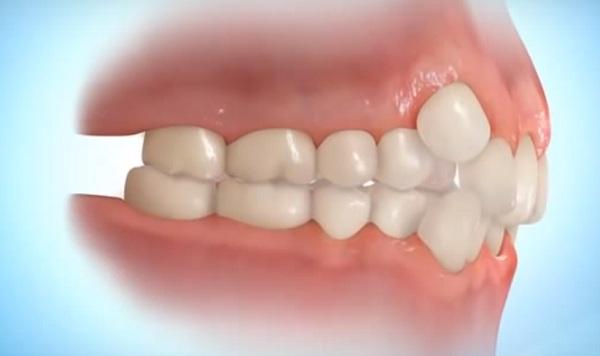 A fogak szabályozására felnőttként is szükség lehet