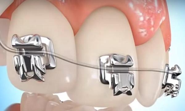 A mai modern fogszabályozók lassabban dolgoznak, de alig láthatók