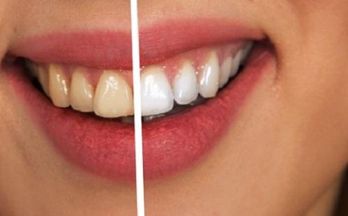 Fehér fogakkal állást szerezni is egyszerűbb!