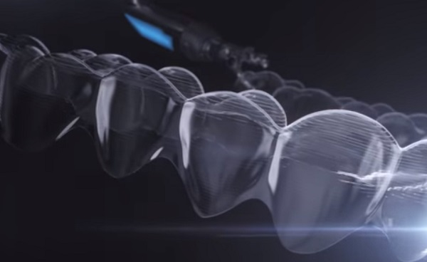 Mérföldkő a fogszabályozásban az átlátszó, mozgatható eszköz