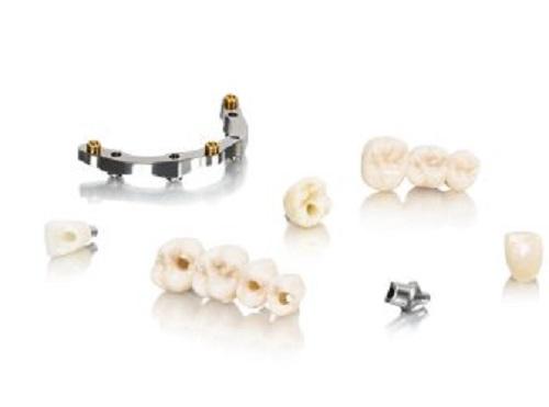 A fogimplantáumokat nagyon ritka esetben nem fogadja be a szervezet