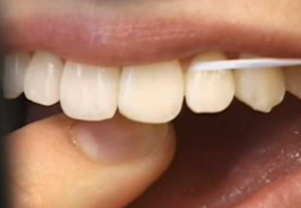 A fogselymezés is a fogápolás fontos része